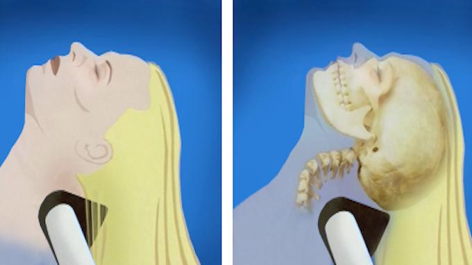 beauty salon stroke syndrome